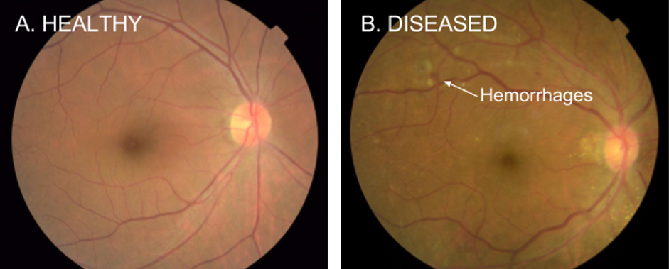 Computer vision algorithms can be used to process retinal fundus photographs to screen for diabetic retinopathy.