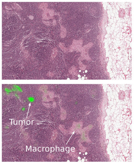 Applying computer vision technology during a lymph node biopsy can help detect the tumor region.